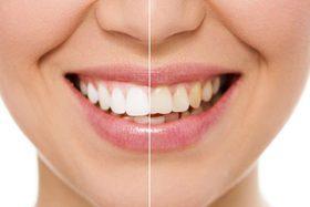 Отбеливание системой «ZOOM» в стоматологической клинике «Профимед»