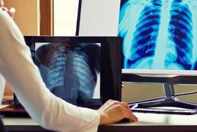 Современная цифровая рентгенография с тонкой настройкой каждого снимка
