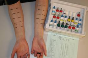 Скидка 40% на кожные аллергопробы методом прик-тестирования