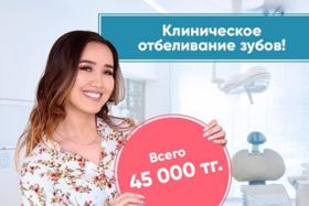 Отбеливание зубов 45 000 тг