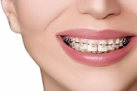 Скидка 15% на ортодонтию и  ортопедию
