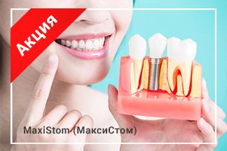Скидка 20% на протезирование зубов