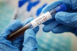 Кто может пройти тест на COVID-19 за счет средств медстрахования