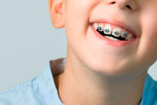 К чему приводит неправильный прикус у детей: рассказывает ортодонт