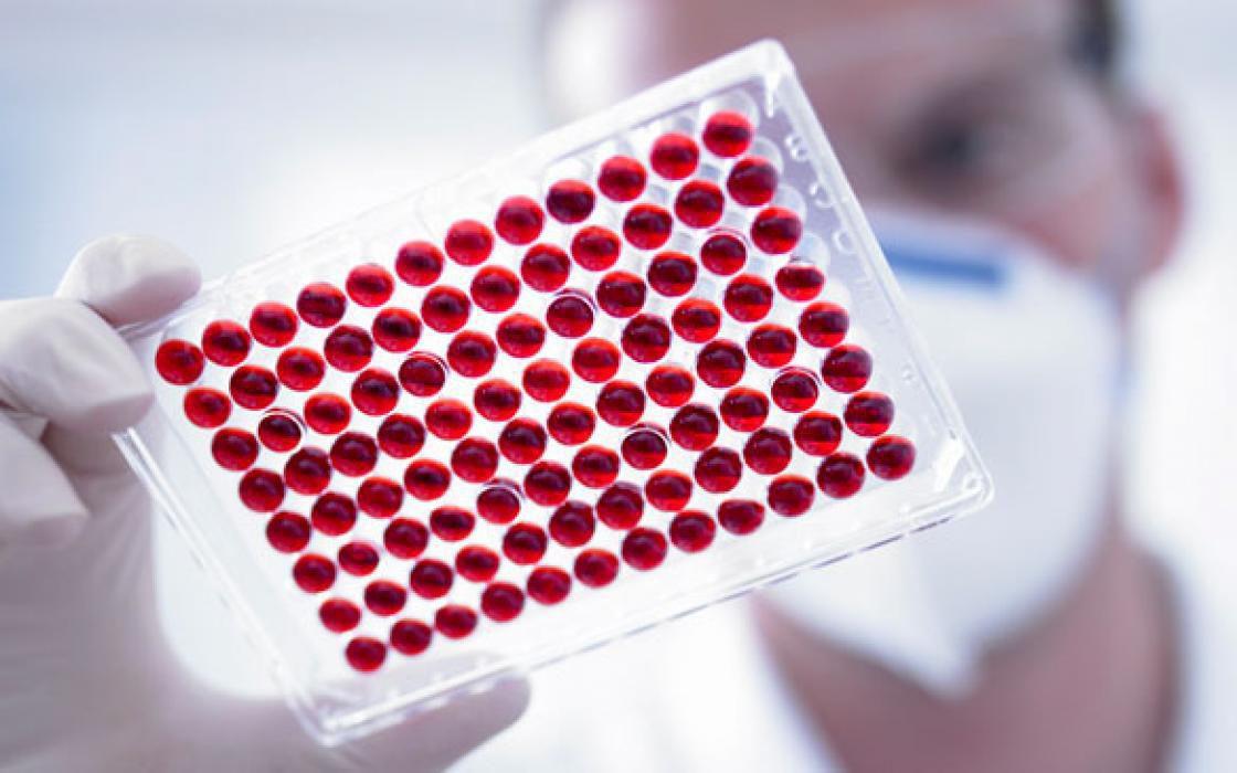 Что показывает СОЭ при онкологии Степень важности анализа